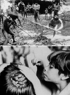 Top: two men duel over the infidelity of one of their wives. Bottom: many Yanomamo men have masses of scar tissue on their heads from such battles